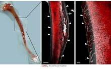 "Towards entry ""News  Discovery of blood vessel system in bones"""
